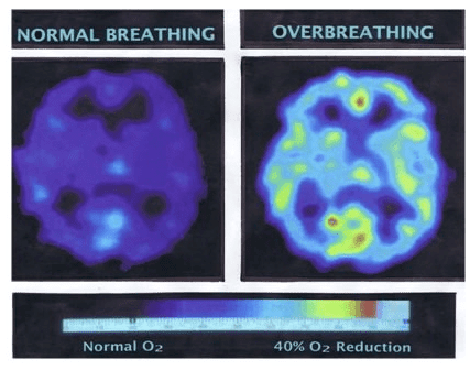 Here's what can happen to your brain after just two minutes of over-breathing... notice the 40% drop in oxygen